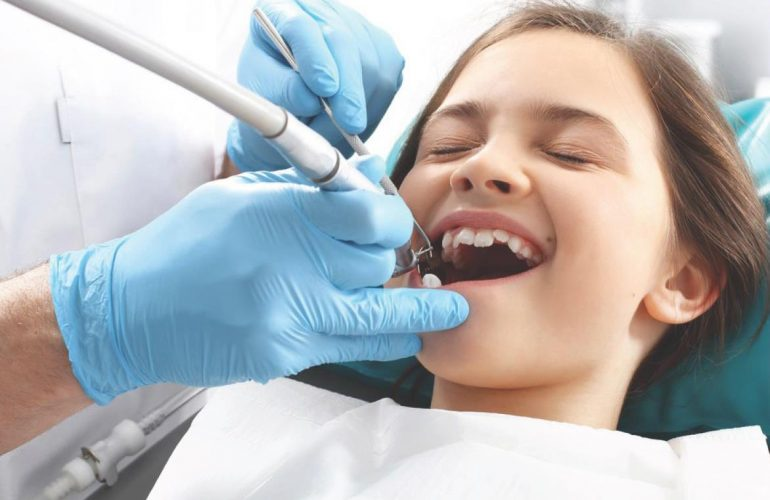 洗牙 深度洗牙