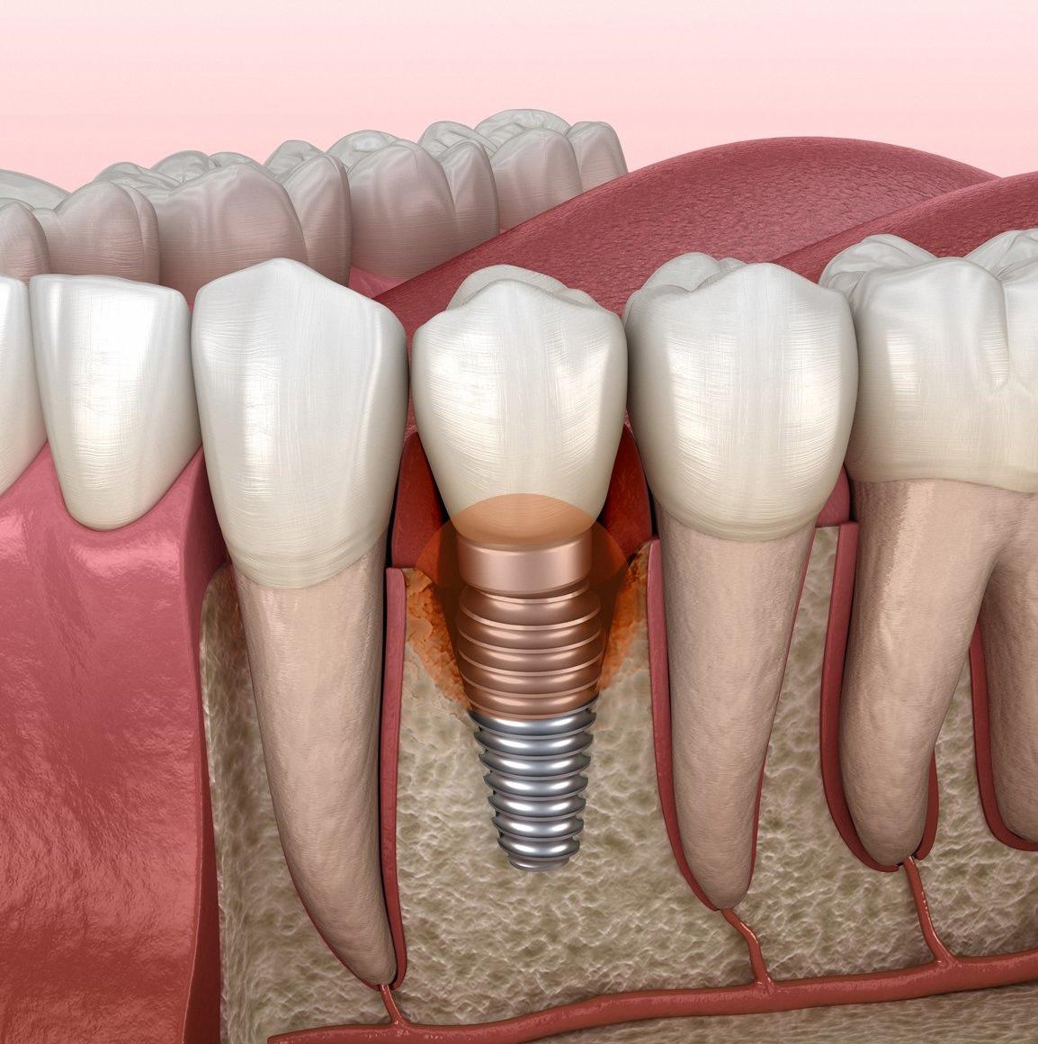 植牙;人工植牙;种植牙;种牙;无痛植牙;3D植牙