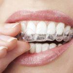 纽约,牙齿矫正,隐形矫正,牙矫正,牙齿,正畸,隐适美,牙套,虎牙,矫正,舌侧矫正,牙齿矫正医生
